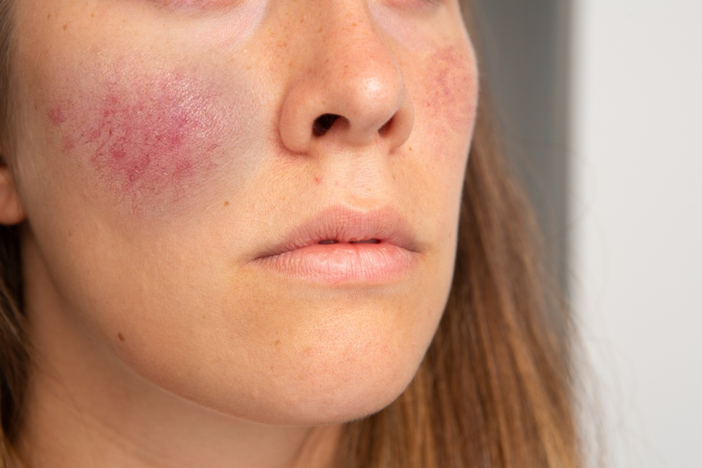 rosacea-explained