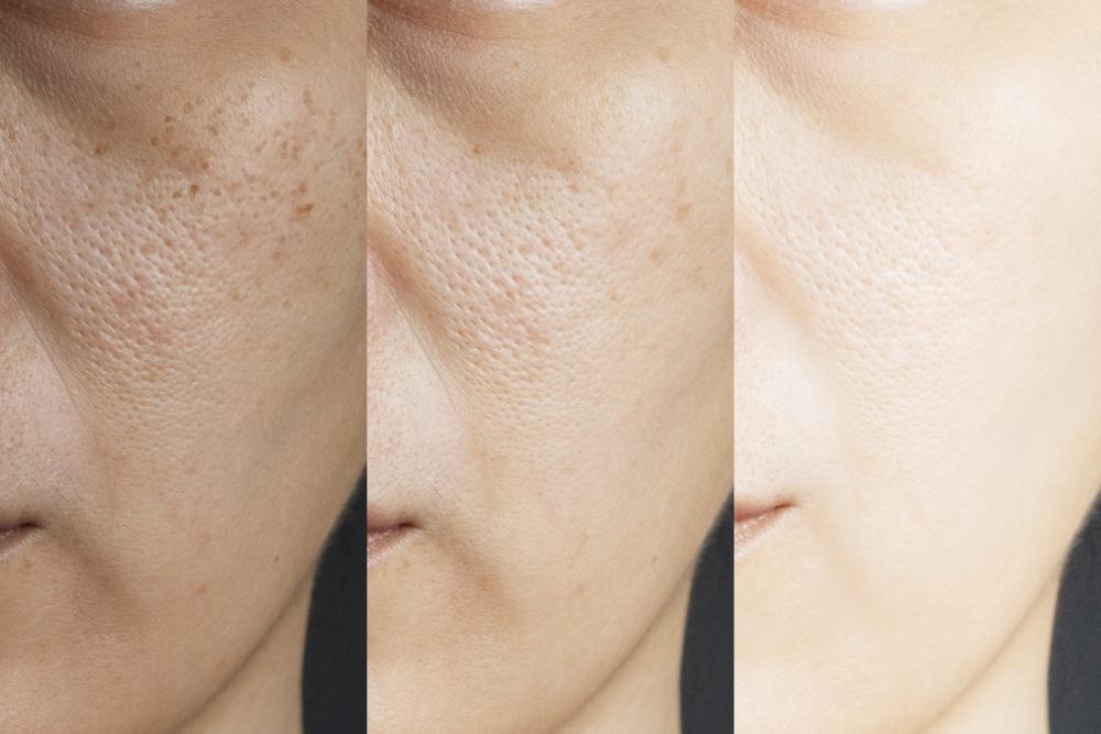 hydroquinone skin lightening